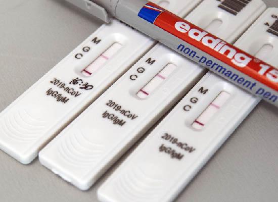 Тестирование сотрудников на COVID-19